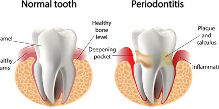 normal-vs-periodontitis